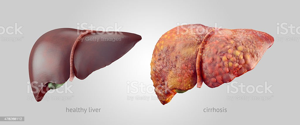 Realistic illustration of healthy and sick human livers stock photo