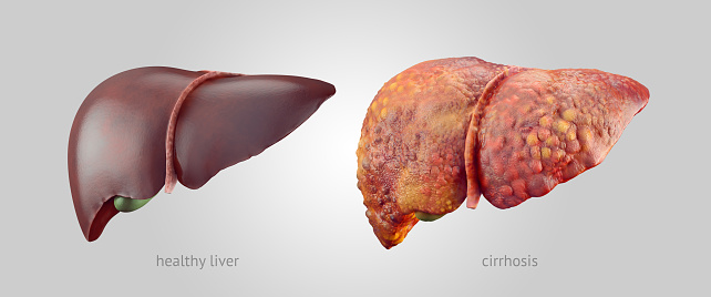 Realistic Illustration Of Healthy And Sick Human Livers Stock Photo - Download Image Now