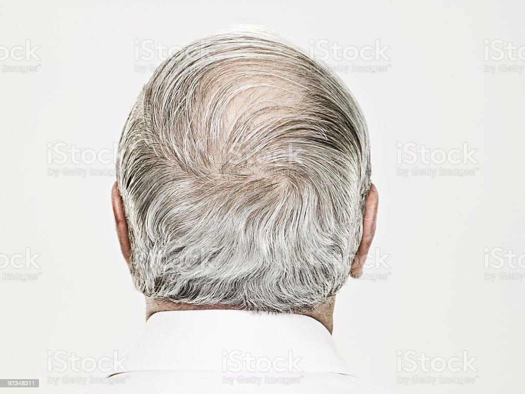 Rückansicht eines Glatzenbildung alter Mann – Foto