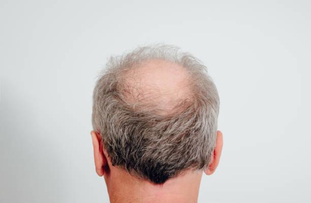 rückansicht eines männlichen kopfes ohne haare. haarausfallkonzept, vogelnest auf dem kopf. - glatze schneiden stock-fotos und bilder