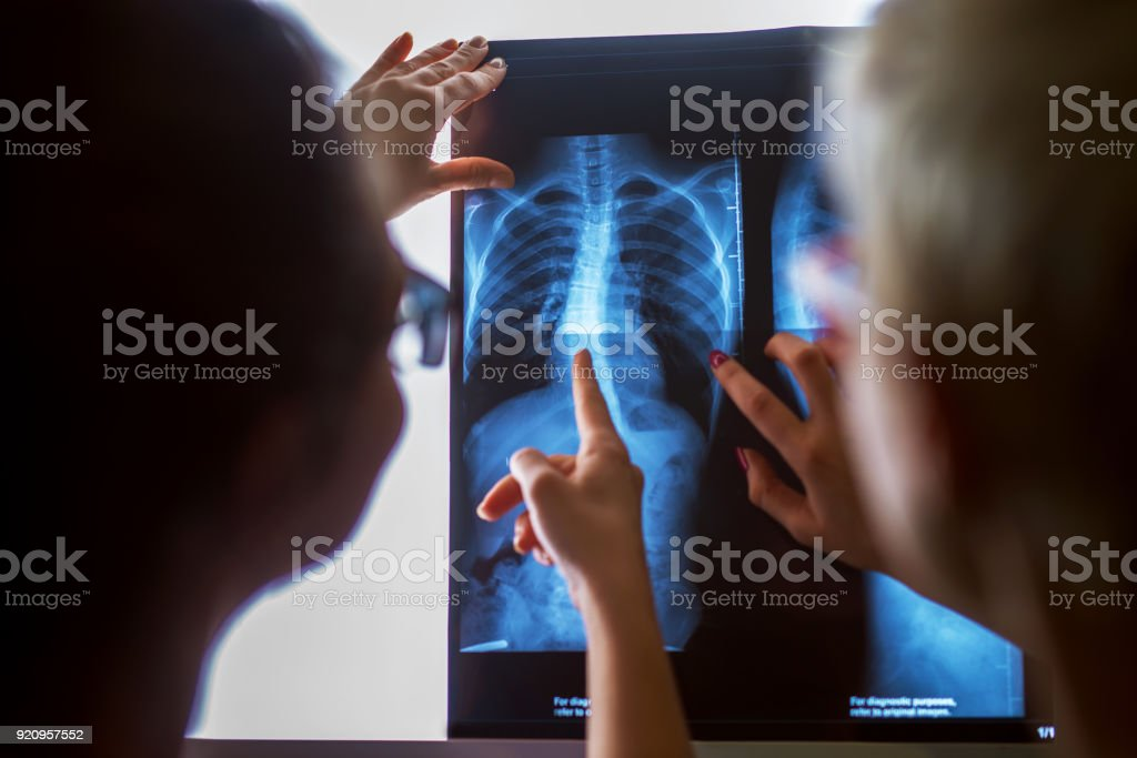 Rear view of blurred women checking X-ray in a doctors office. stock photo