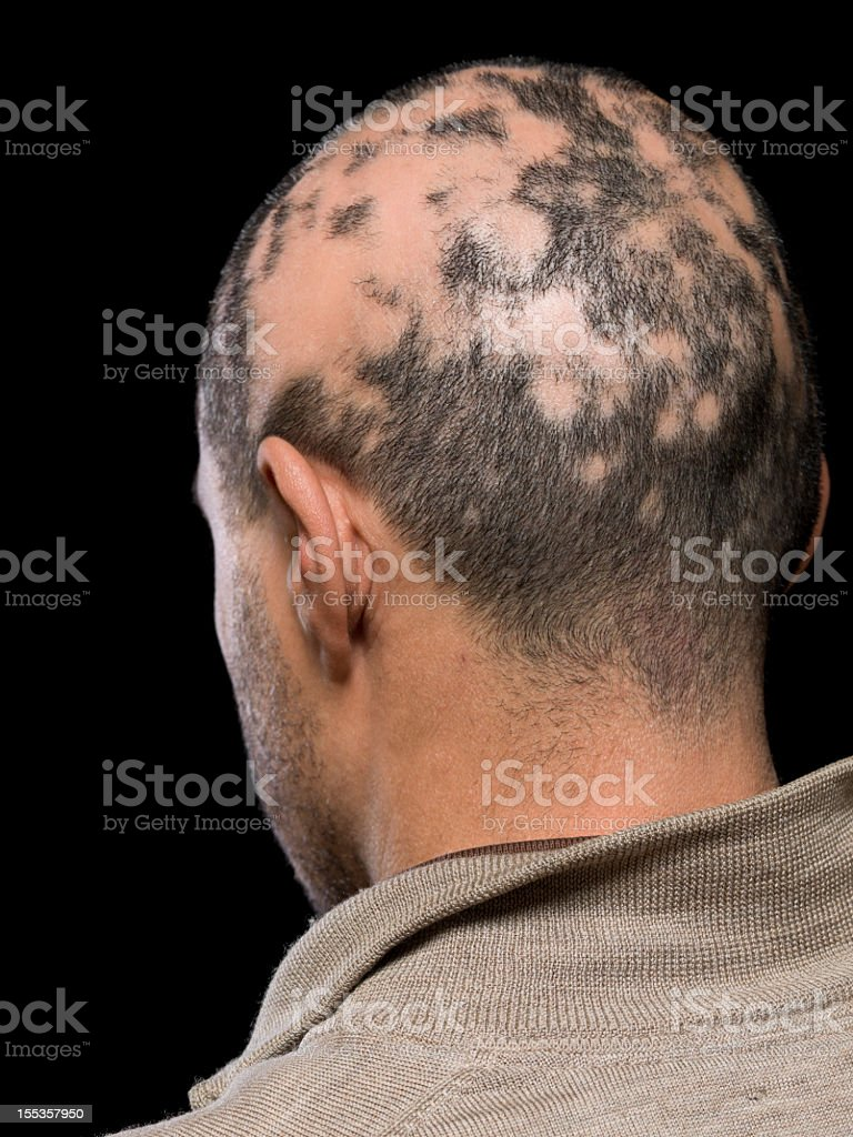 Rear view of mans head with alopecia stock photo