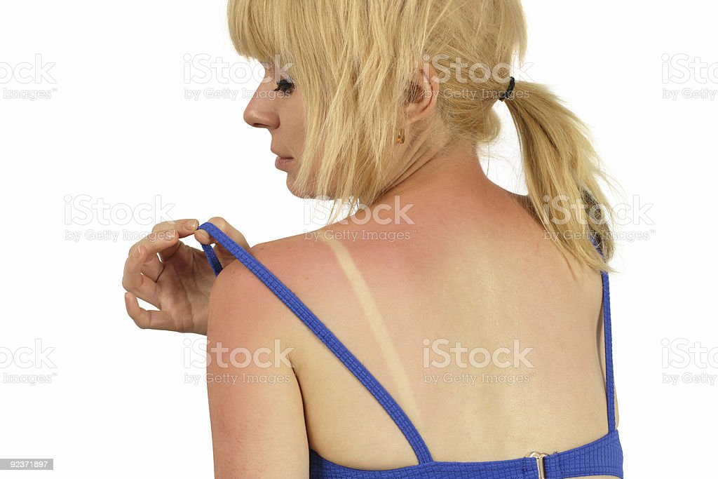 Rear view of woman moving shirt strap to look at her sunburn stock photo