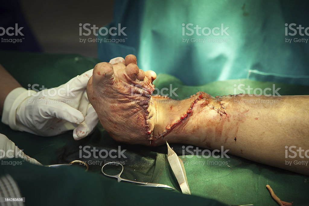 Reconstructive clubfoot surgery stock photo