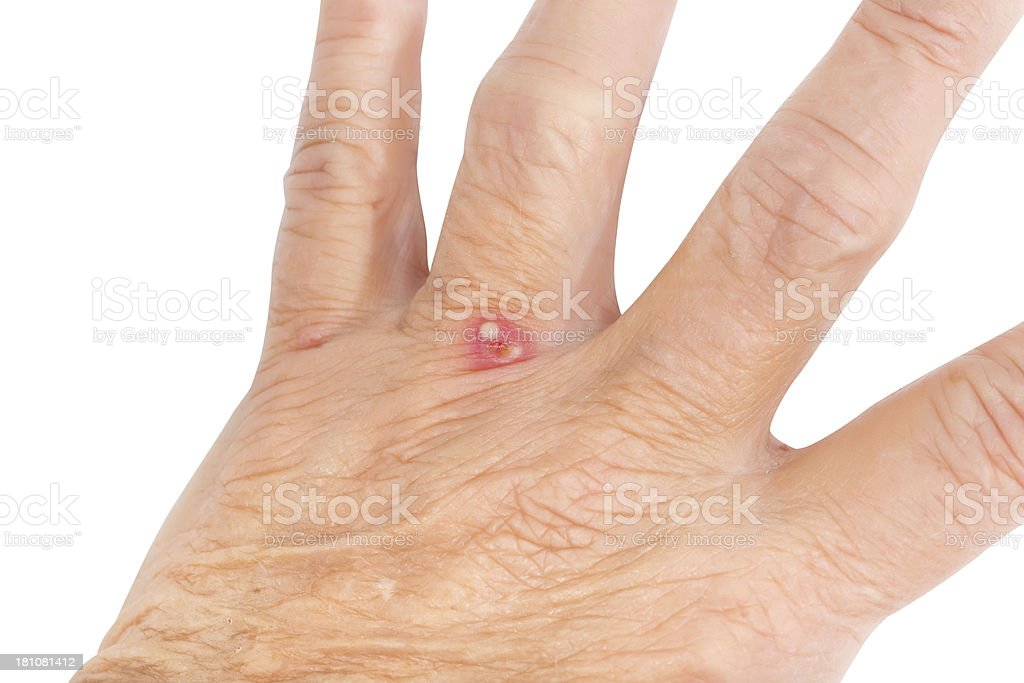 Red Ant Bite on the Hand of a Female, Senior Adult Near her Fingers stock photo