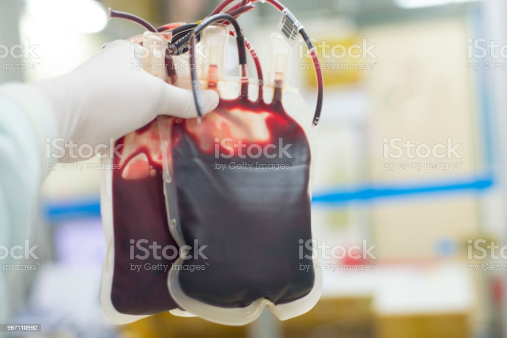 Red blood bag in hand scientist over white background in laboratory. - fotografia de stock