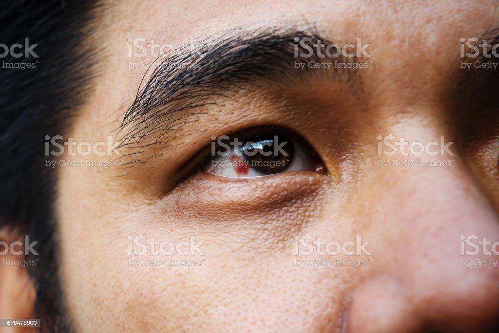 Red bloodshot eye stock photo