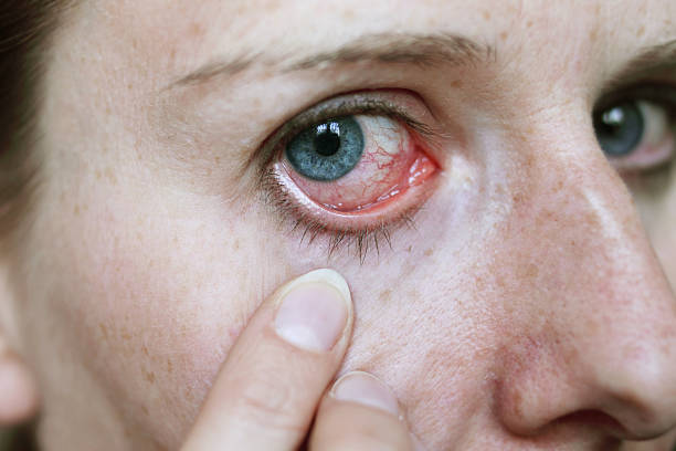 red eye after hayfever attack stock photo