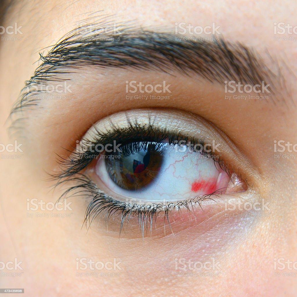 red eye injury stock photo