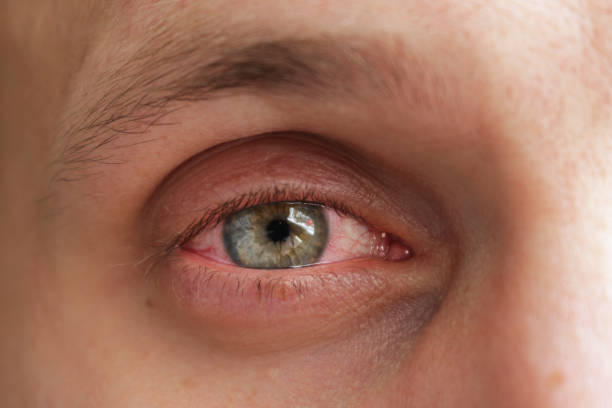 red eye of a patient with human conjunctivitis - detachment stock pictures, royalty-free photos & images