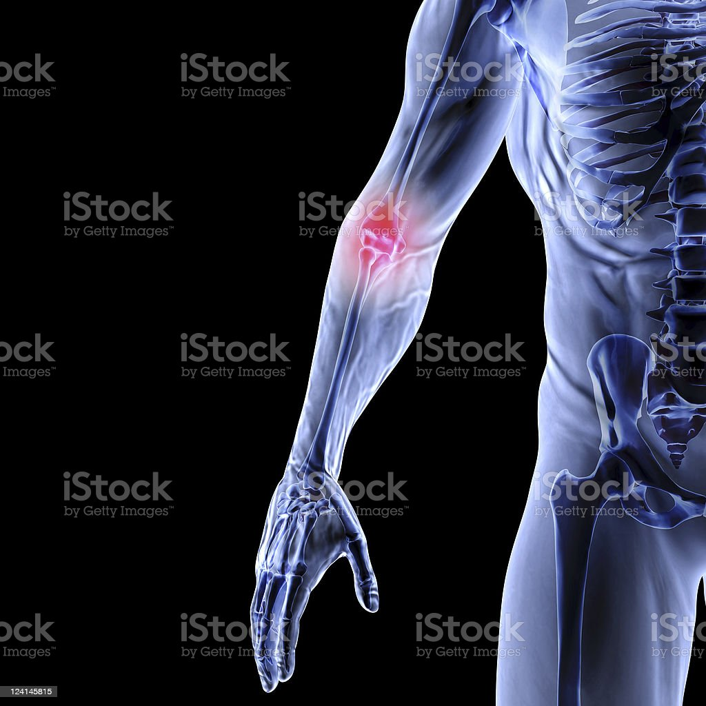 Red light shining on X-ray to depict pain stock photo