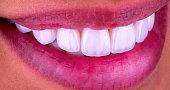 red lips white white veneers