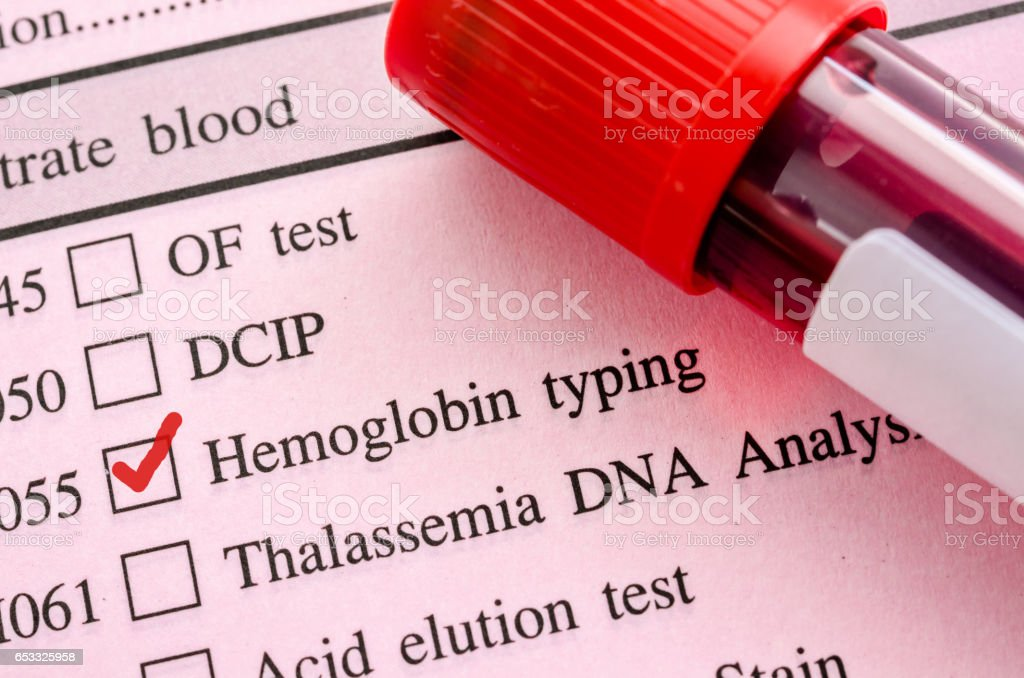 Red mark in screening form request for Hemoglobin typing test (HB). stock photo