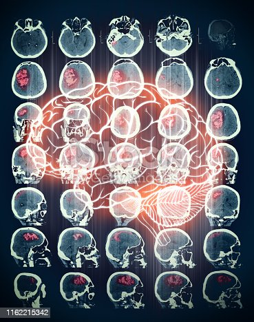 istock Red marked zone on the CT scan of human brain 1162215342