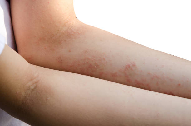 red rash on the arms stock photo