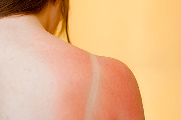 red skin - verbrand stockfoto's en -beelden