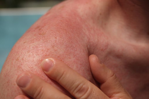 Red skin with blisters on male shoulder and back. Burns and eczema on the body concept