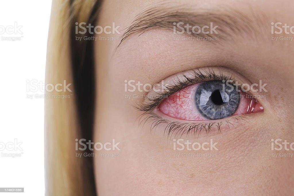 Red Sore eye stock photo