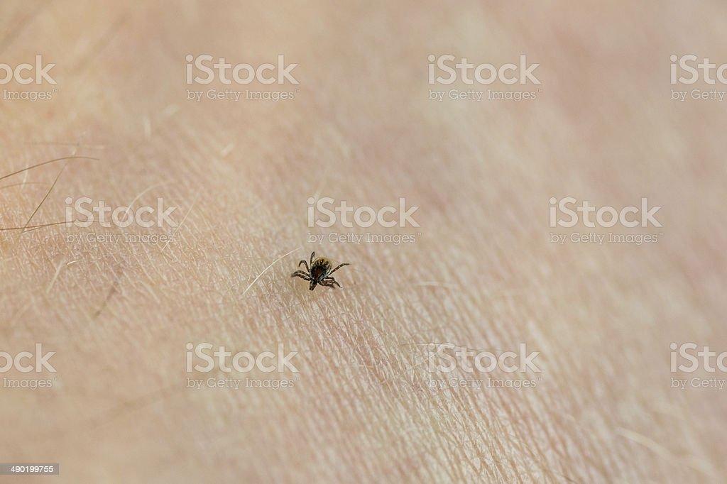 Red Tick In Menschliche Haut Stockfoto Und Mehr Bilder Von