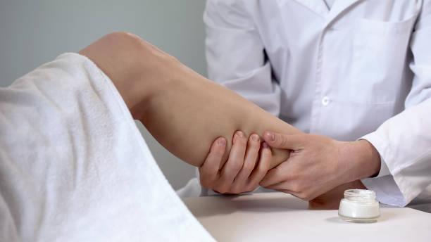 revalidatie specialist crème gebruikt voor been massage, herstel na verstuiking - bloedvat stockfoto's en -beelden