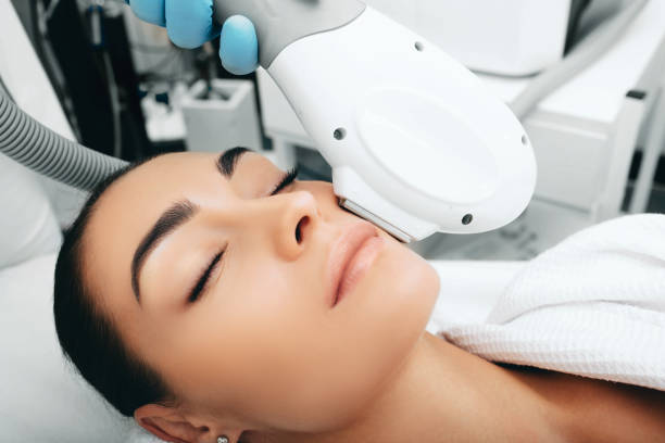 ELOS rejuvenation technology for removes brown spots. Procedure of skin rejuvenation ELOS rejuvenation technology for removes brown spots. Procedure of skin rejuvenation dark spots face stock pictures, royalty-free photos & images