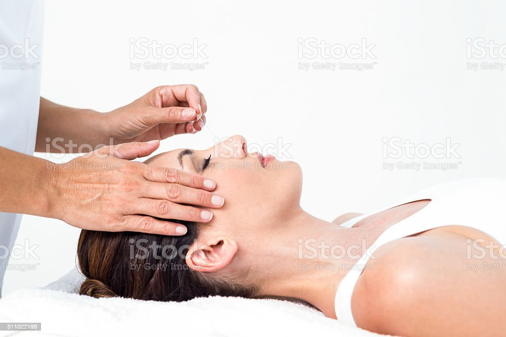 Relaxed woman receiving an acupuncture treatment stock photo