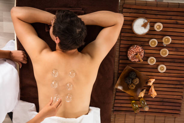 relaxed young man receiving cupping treatment on back - cupping therapy stock photos and pictures