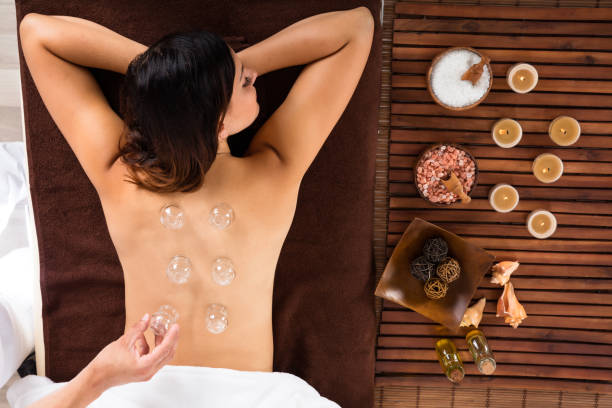 relaxed young woman receiving cupping treatment on back - cupping therapy stock photos and pictures