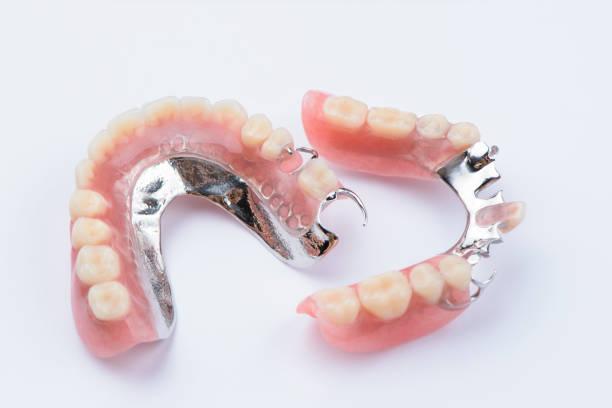 verwijderbare metalen partiële prothese op witte achtergrond - kunstgebit stockfoto's en -beelden