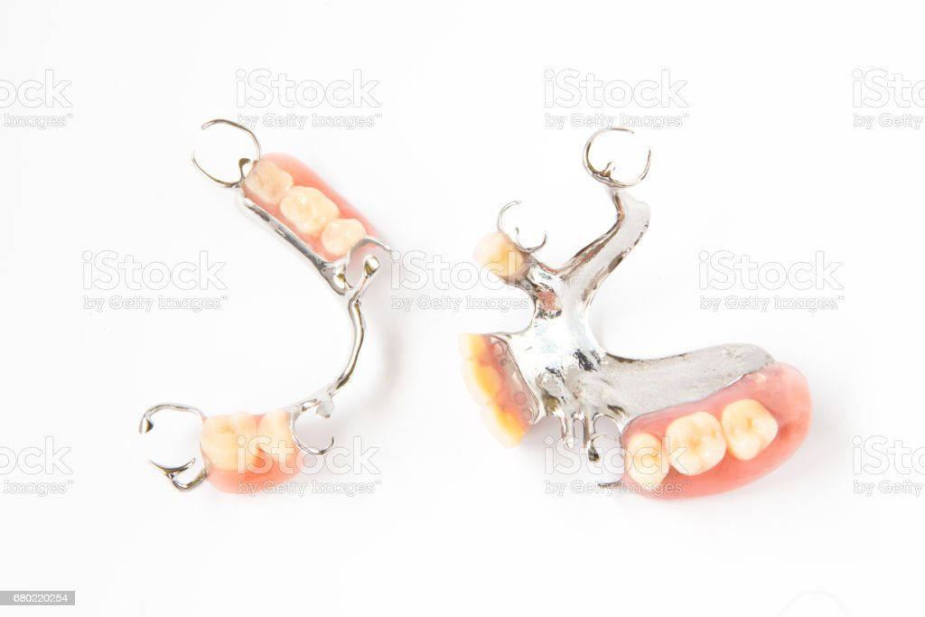 removable partial denture on white background. stock photo