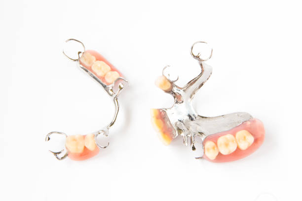 removable partial denture on white background. - Photo