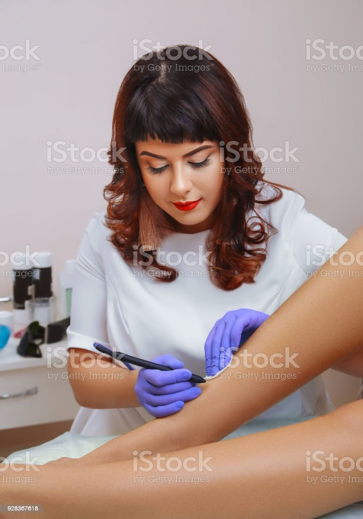 Removal, coagulation of vessels on the legs. stock photo