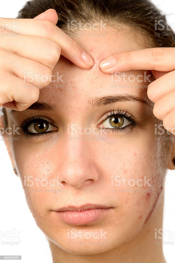 remove pimple royalty-free stock photo