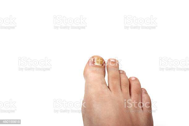 Ingrown toenail disease blood wound infection bacteria  finger  skin scab pus toe liquid whitlow felon treatment swelling on a white background