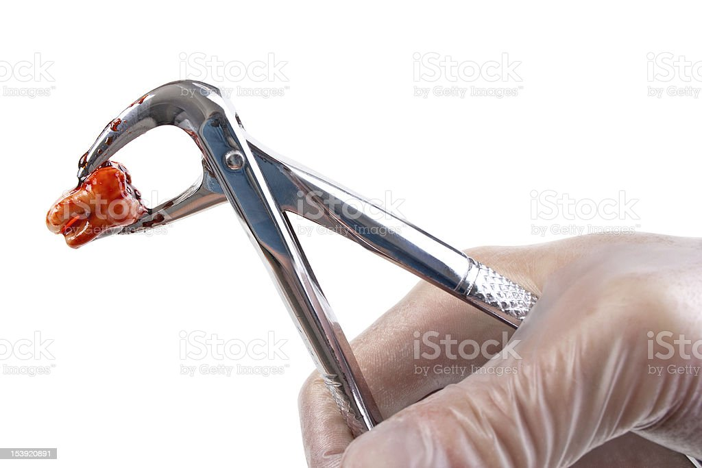 Removed tooth and forceps in hand stock photo