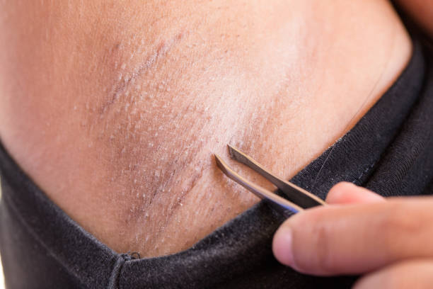 Removing armpit hair with tweezers. stock photo