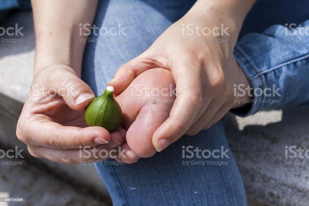 Removing wart on natural way with fig juice stock photo