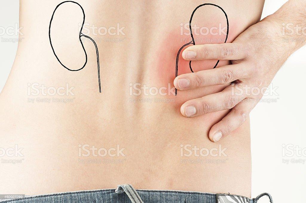 renal Kolik-männlichen Erwachsenen – Nierenförmiger Krankheit – Foto