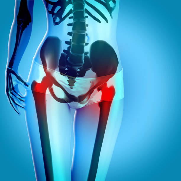 3D render of a female figure with hips in pain stock photo