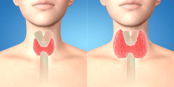 3D Render of normal thyroid glands and goiter in the human female body stock photo