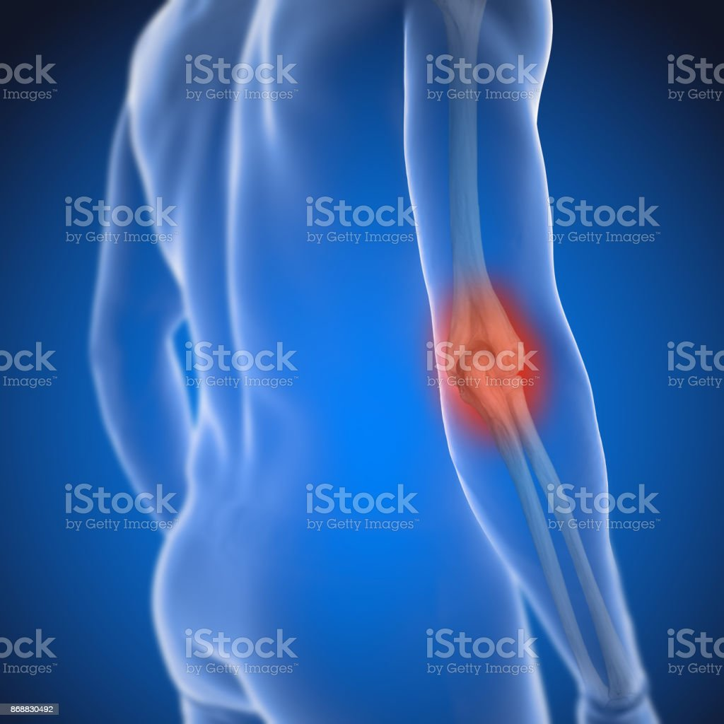 3D Render of Osteoarthritis - rheumatoid arthritis in the human elbow joint stock photo