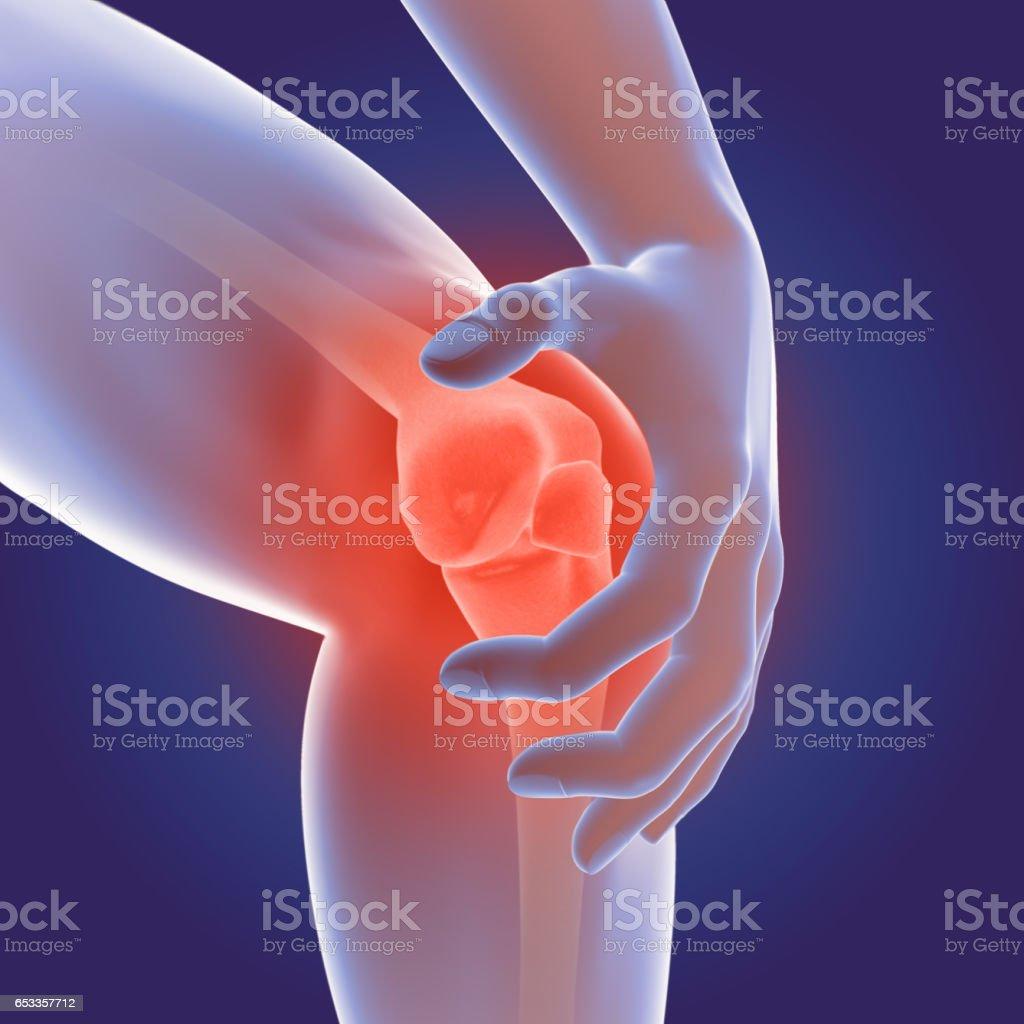 3D Render of Osteoarthritis - rheumatoid arthritis in the human knee joint stock photo