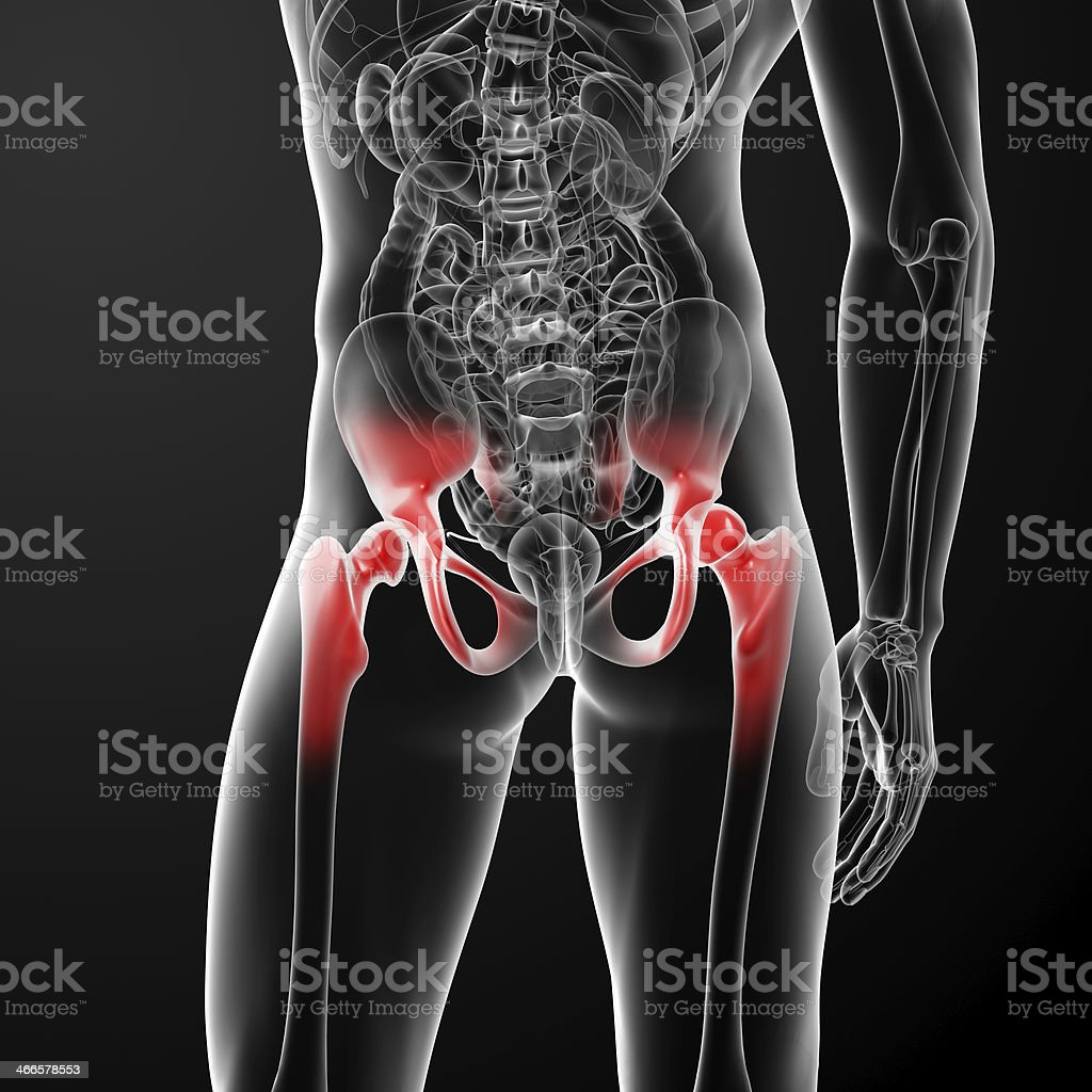 3D rendered medical illustration of painful hip joints royalty-free stock photo