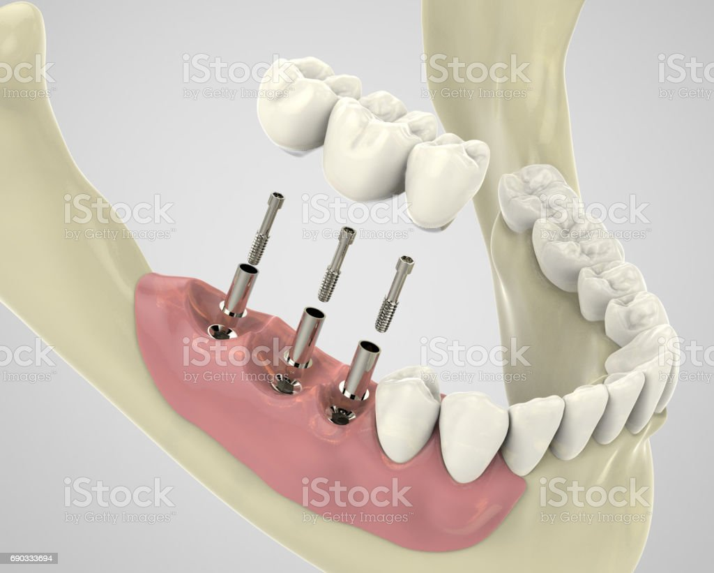 3D-Rendering implantat - Lizenzfrei Digital generiert Stock-Foto