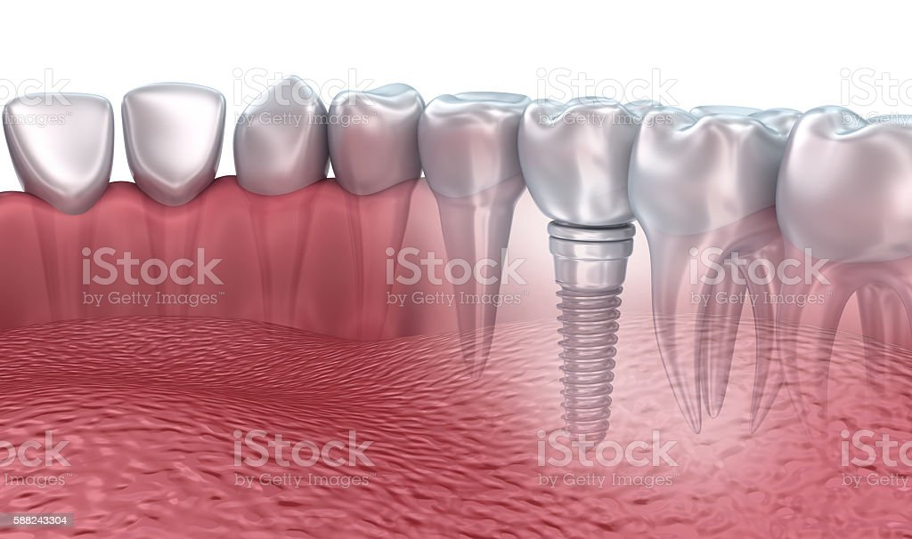3D rendering : lower teeth and dental implant transparent render stock photo