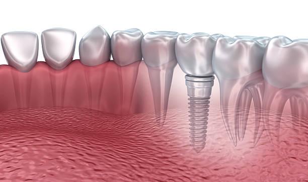 3d rendering : lower teeth and dental implant transparent render - dentine stockfoto's en -beelden