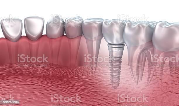 3d Rendering Lower Teeth And Dental Implant Transparent Render Stockfoto en meer beelden van Chirurgie