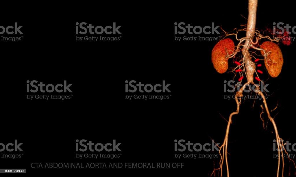 CTA ABDOMINAL AORTA AND FEMORAL RUN OFF  3D rendering. stock photo