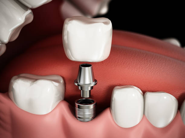 3d-rendering darstellung zahnimplantat verfahren - zahnimplantat stock-fotos und bilder