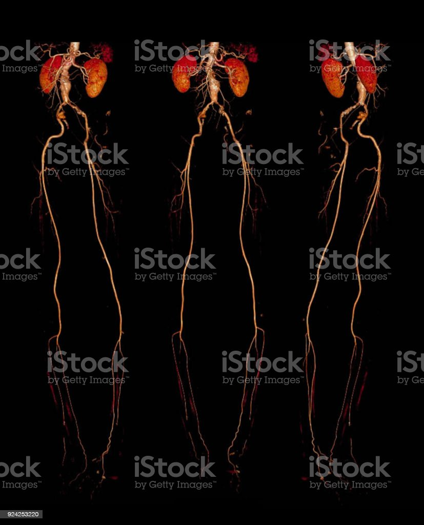 CT SCAN 3D rendering Vessel of lower extremity. stock photo